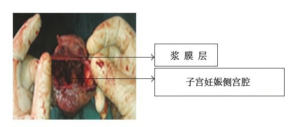 先天性苗勒管发育异常的女性约占女性总人数的 1.5%,其中双角子宫的发生率约为 25%。Grimbizis 等人的报道显示,普通人群中双角子宫发病率为 4.3%,其中不孕的患者约有 3.5%,而反复流产的患者约占 13%。双角子宫的形成主要由于胚胎发育过程中,两侧副中肾管尾端已大部汇合,末端中隔已吸收,故形成一个宫颈及一个阴道,而子宫底的部分汇合不全,导致子宫两侧各有一角突出。外观上根据中隔的长度又可分为双角单子宫和双角双子宫两种(图 1)。  图 1 双角子宫的两种分型,左侧双角单子宫,右侧双角双子宫
