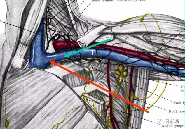 锁骨下静脉穿刺时,病人取头低脚高位,穿刺部位在锁骨下第一肋骨下缘