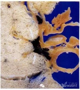 组织学切片(he染色),图内结构包括了呼吸性细支气管.