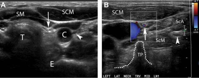 甲状腺癌超声图谱