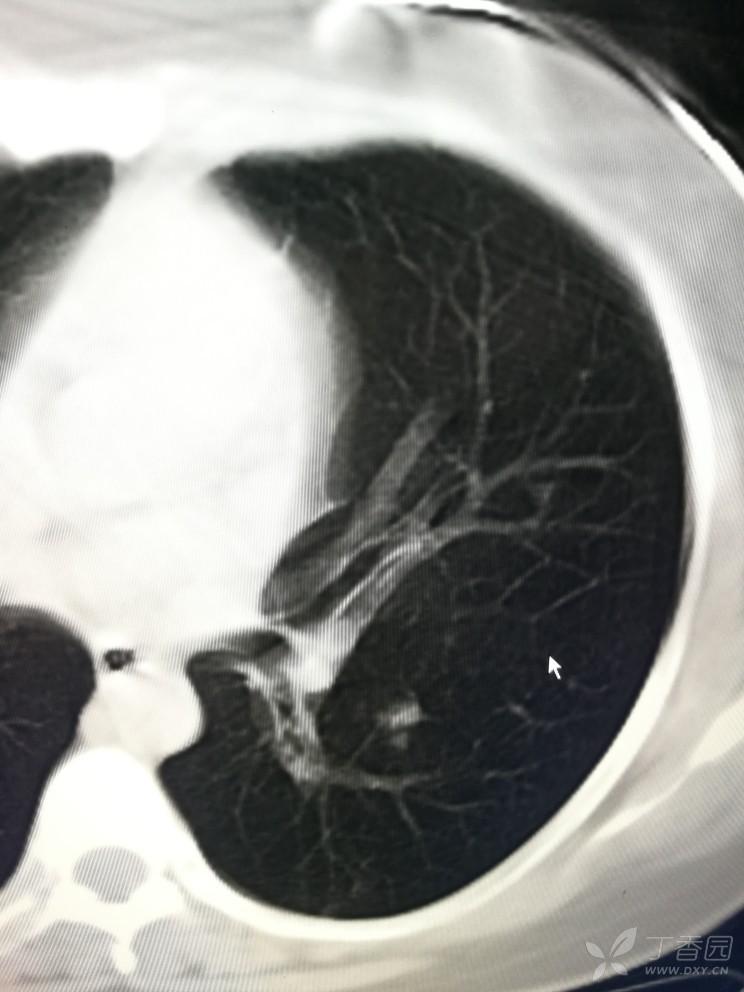 请各位老师看看肺内病灶.左下肺支气管内考虑结核吗?