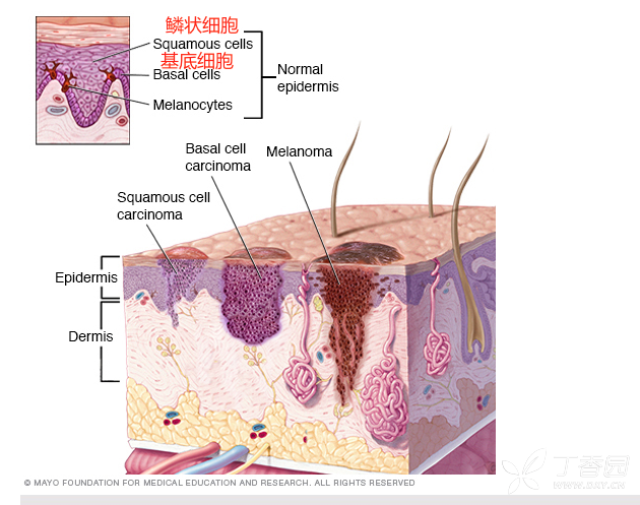 真皮中也有毛囊,汗腺,皮脂腺,顶分泌腺,淋巴管及 血管