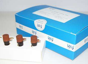 猪流行性腹泻病毒荧光定量RT-PCR检测试剂盒