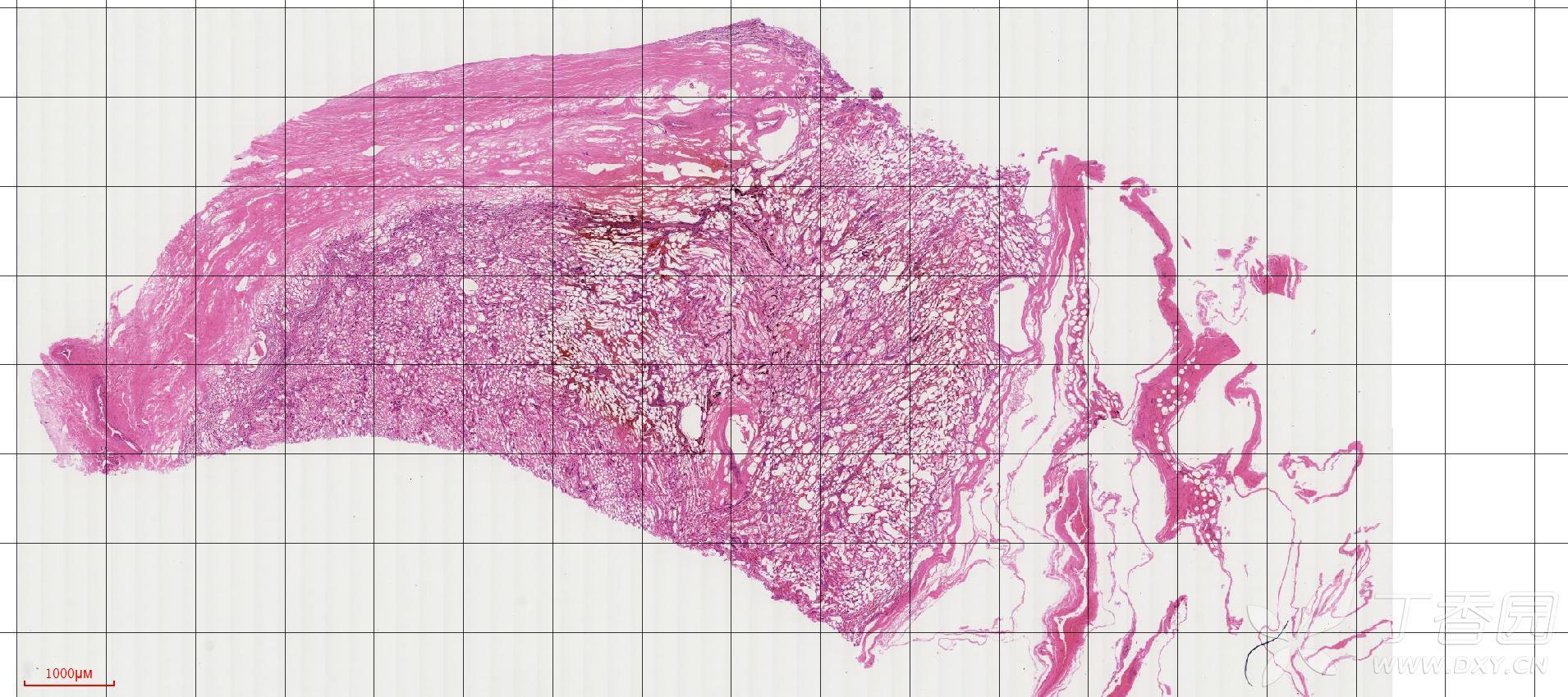 鲸肾组织切片,大佬帮忙看看这是什么结构