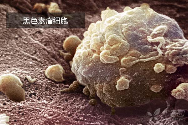 黑色素瘤早期囹�a_黑色素瘤免疫联合疗法|香港治疗黑色素瘤费用
