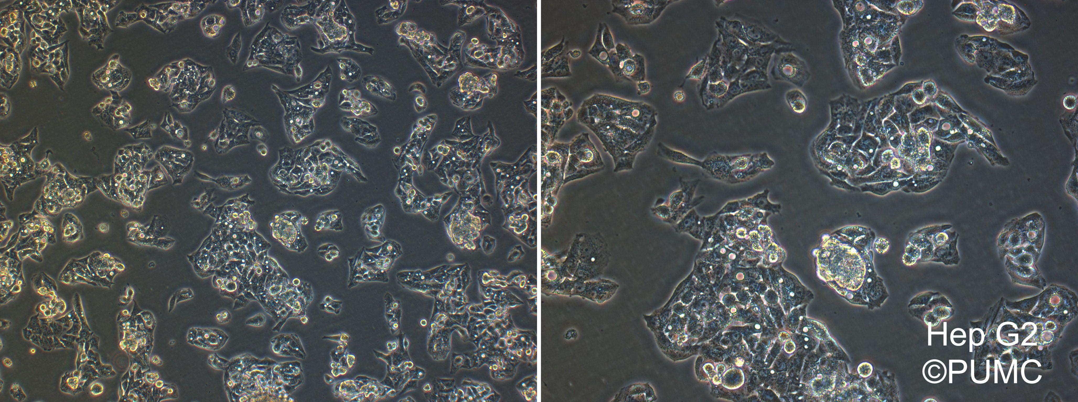 肝癌类细胞培养统计及问题沟通