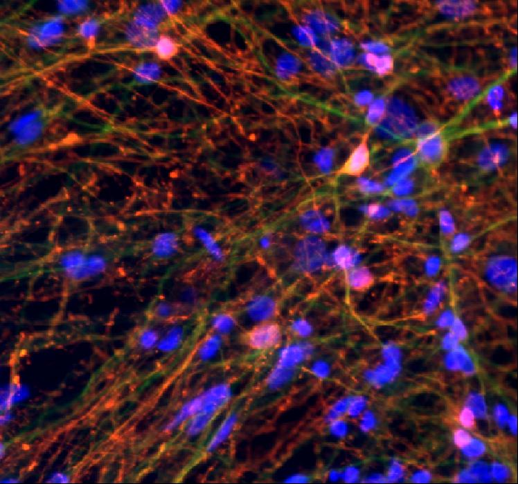 人GABA能神经元