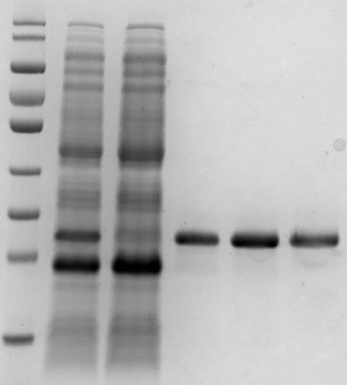 原核重组蛋白表达纯化