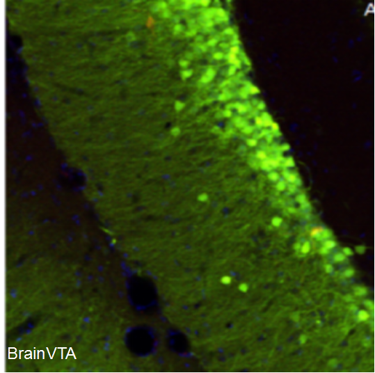 化学遗传激活 rAAV-CaMKIIα-hM3D(Gq)-EGFP