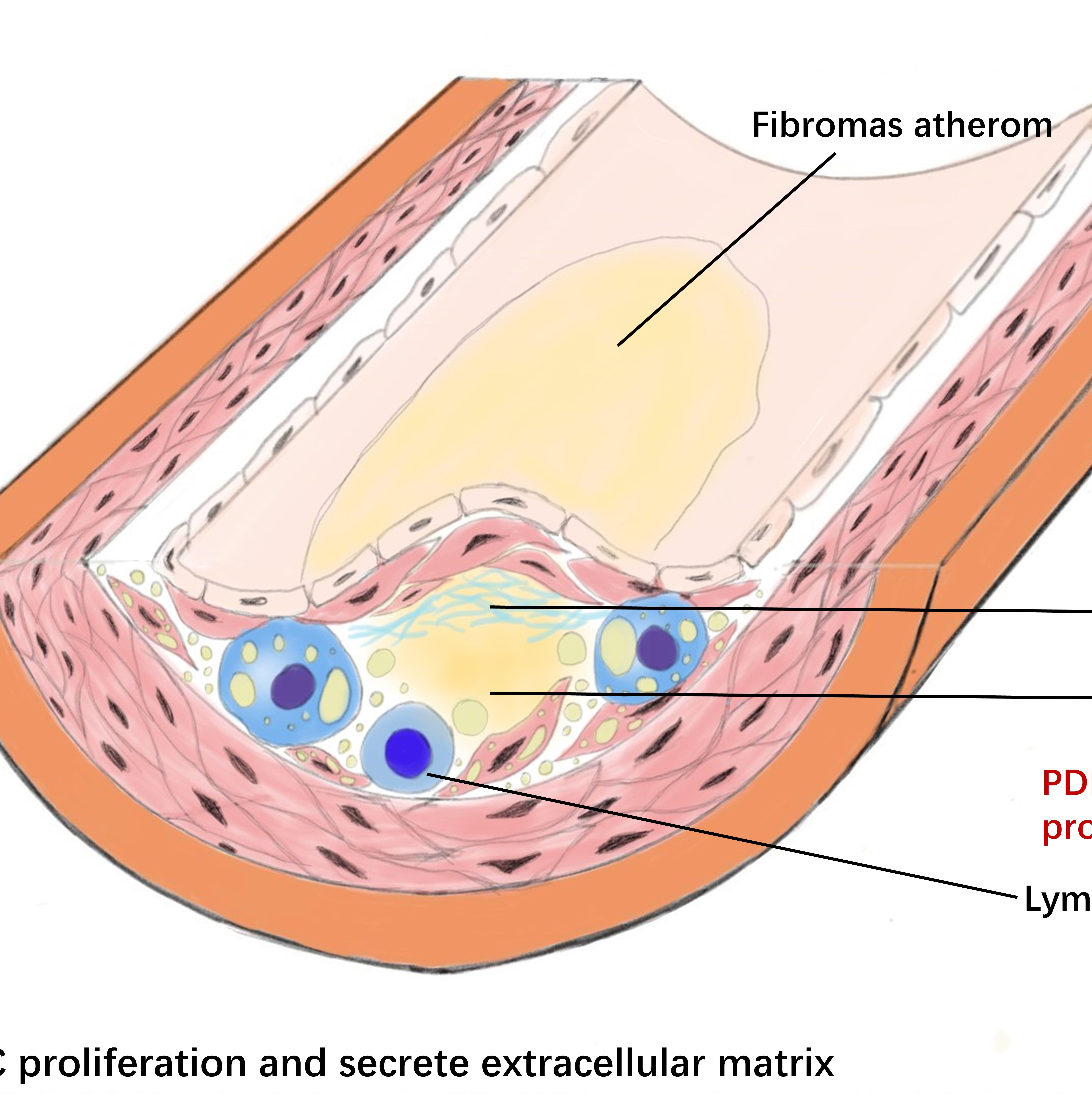 心血管科学一图文摘要SCI论文排版示意图封面科研作图绘图插图配图