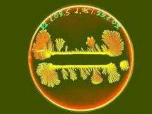 睾丸酮丛毛单胞菌