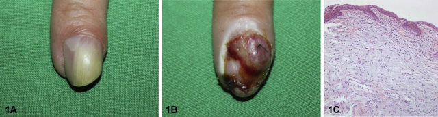 Subungual tumor on the left index finger with light yellowish discoloration.jpg