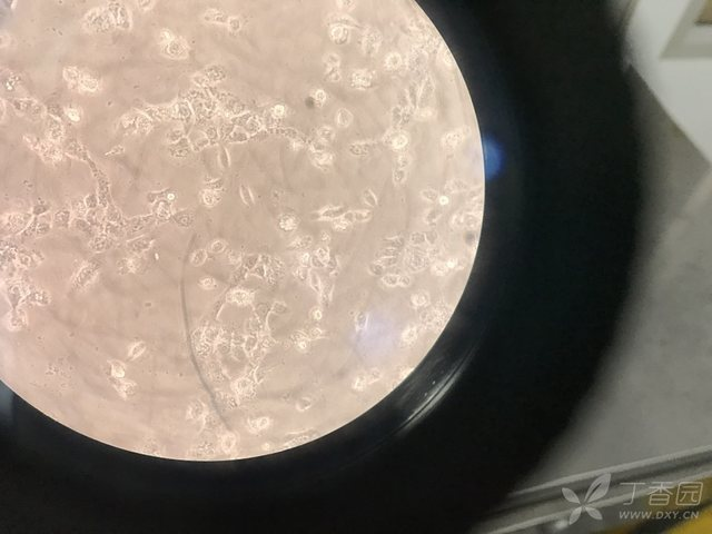 Beas2b细胞培养求助