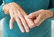 关于痛风:不可不知的用药细节
