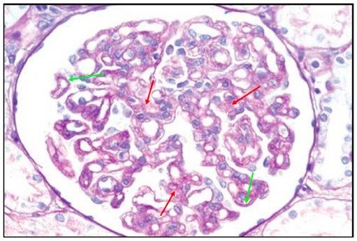 轻度系膜增生性肾炎_肾内病理图解:遗传性肾病 - 丁香园