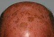 头皮光化性角化病如何治疗?这项研究帮你理清思路