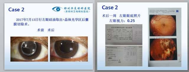 病例4.jpg
