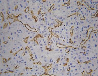 免疫组化/IHC/ICC/免疫组化分析