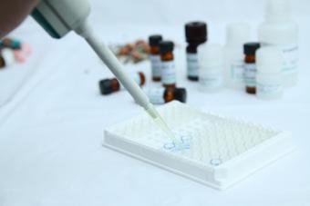 ELISA检测/酶联免疫检测/化学发光检测