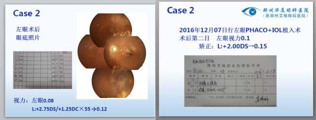 病例3.jpg