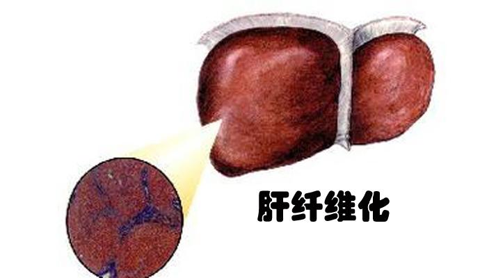 肝纤维化模型