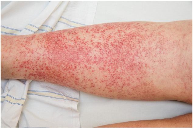 皮肤小血管炎.jpg