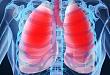 学龄期儿童体脂分布与呼吸阻力、FeNO 及哮喘的相关性