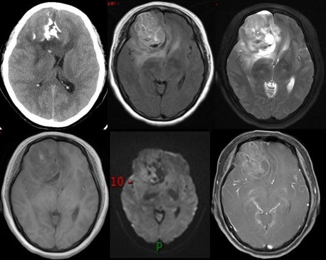 少突胶质细胞瘤的影像学诊断要点