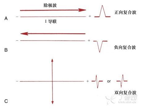 常见心电图的诊断要点 快速掌握:正常心电图的形成机制与判断要点