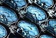 神经科医生不可不知的典型头颅 MRI 特点