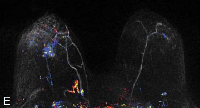 乳腺图2e.JPG