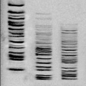 分子生物学:端粒酶 TRAP-PCR 银染实验服务