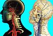 神经科临床思维养成:反复发作性多发脑梗死病因之谜