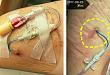 5 个关键点分析:水疱是刺破还是保留?