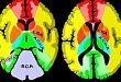 神经科必备:最全脑血管供血区图谱