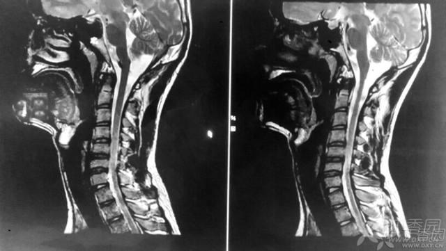 脊柱常用的测量方法 解剖结构标注及部分相关疾病简介