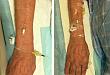 留置针穿刺:每次回血都很好,可一送针就扎破血管!