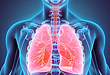 抗肿瘤药物的肺毒性 这 10 种药不可忽视
