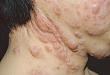 不容忽视的感染:马尔尼非青霉病
