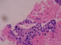 男性乳腺发育-3.png