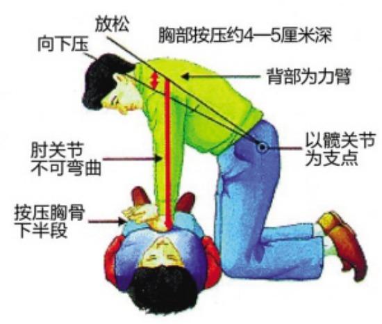 我院开展心肺复苏术(CPR)知识培训及实操训练(1)656.png
