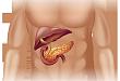 不容忽视:这些药物易引起药源性胰腺炎