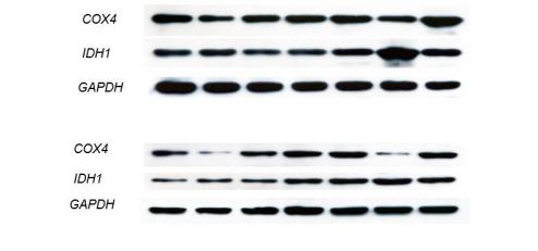 蛋白免疫印迹