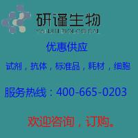 一次性接种环 1ul(蓝色)
