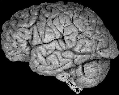三维大脑类小体   (3D Brain Organoids)