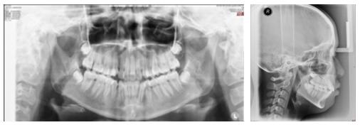 病例5-黑白.jpg