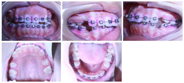 病例8-5.jpg