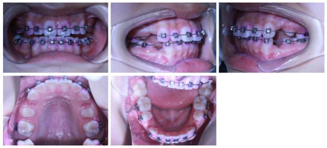病例8-2.jpg