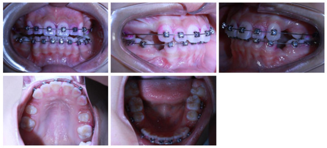 病例8-4.jpg