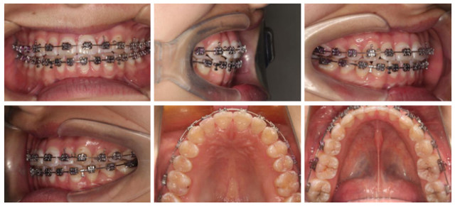 病例1-3.jpg